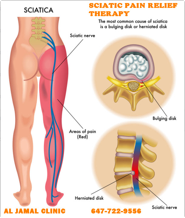 al_jamal_clinic_sciatic_pain_relief_therapy