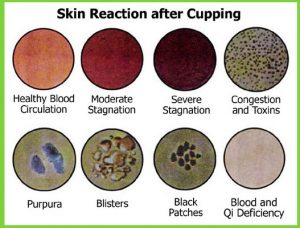 blood_color_chart_cupping_hijamah